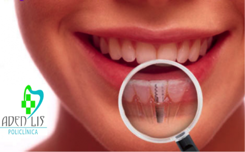 implante dental en Torremolinos